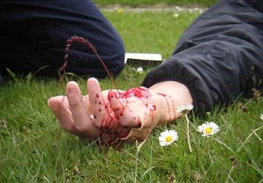 Кровотечение большой интенсивности